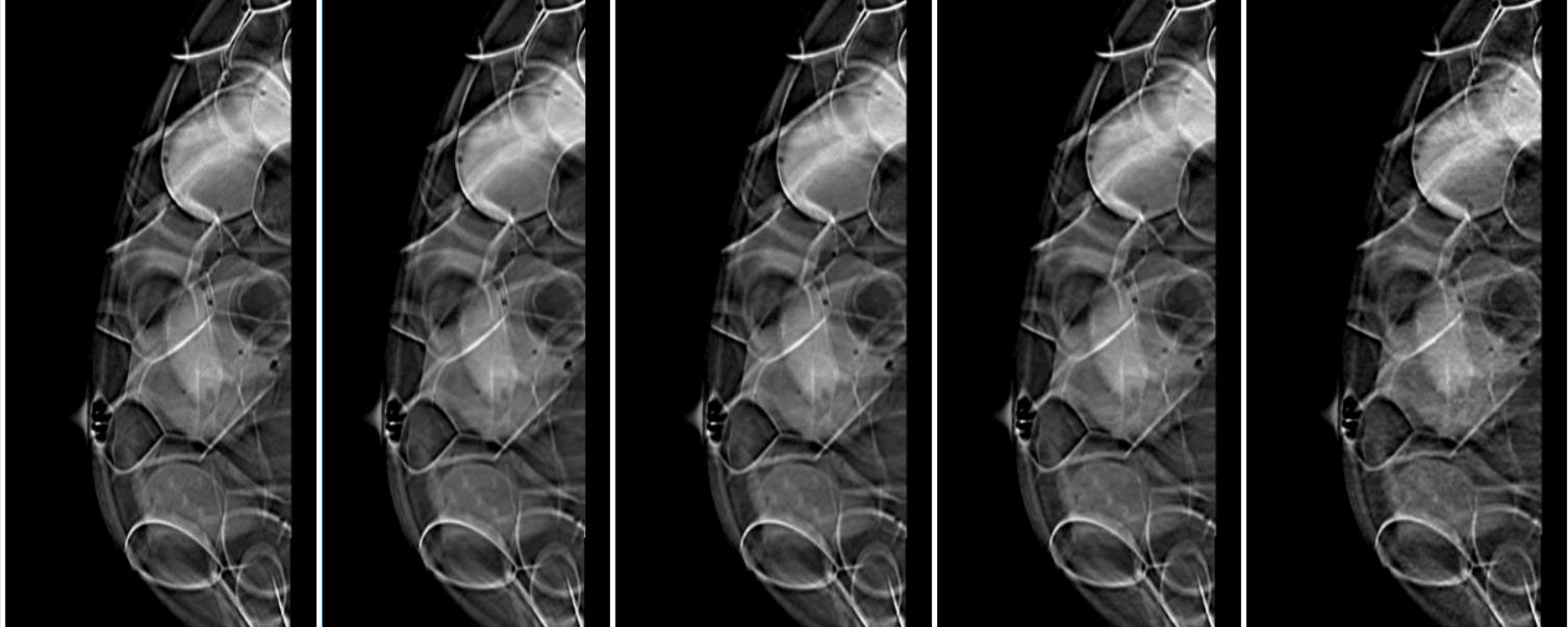 Menor radiação em exames de mama: técnica aposta na restauração das imagens do paciente