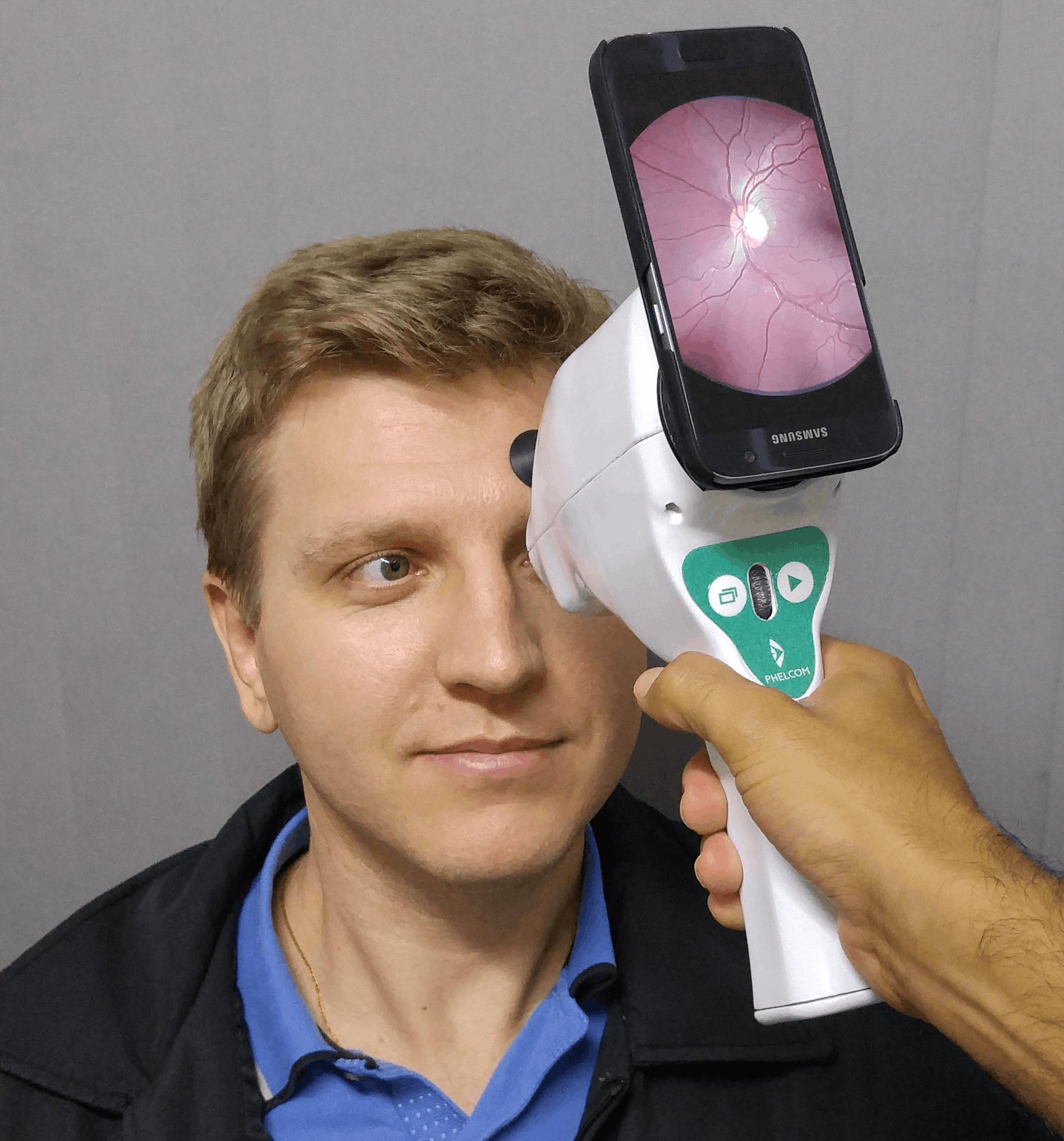 Aparelho desenvolvido por ex-alunos da USP captura imagens da retina com o  uso de smartphones. Imagem  Divulgação Phelcom 5e4a556240